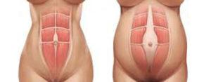 diastase-van-rechte-buikspieren